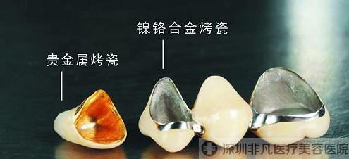 金属烤瓷牙