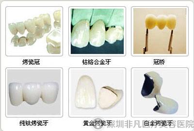 烤瓷牙分类