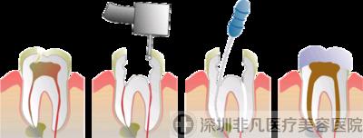 牙齿根管治疗详析