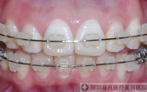 矫正牙齿牙套要带多久