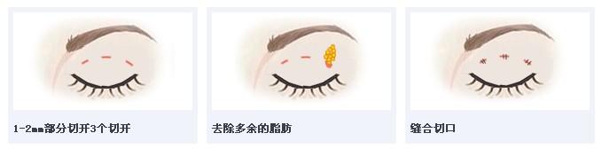 韩式三点无痕双眼皮