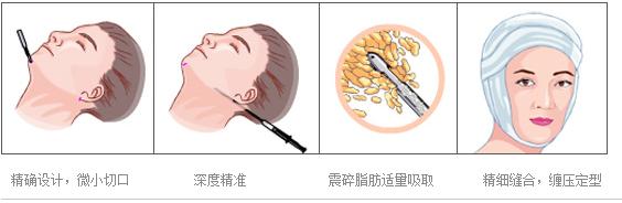 面部吸脂减肥示意图