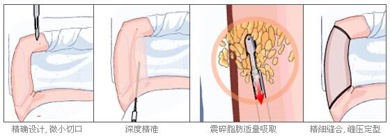 手臂吸脂减肥示意图