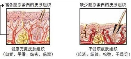肌肤老化示意图