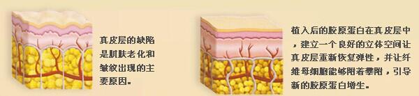 注射胶原蛋白前后皮肤状态