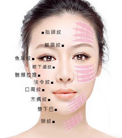 4d蛋白线悬吊除皱紧肤提升轮廓
