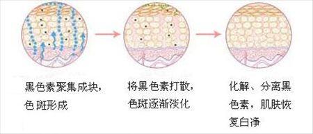 脸上长斑是什么原因用什么方法去掉_激光祛斑效果