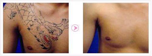 深圳皮秒激光祛斑美肤_蜂巢皮秒镭射洗纹身做一次多少图片